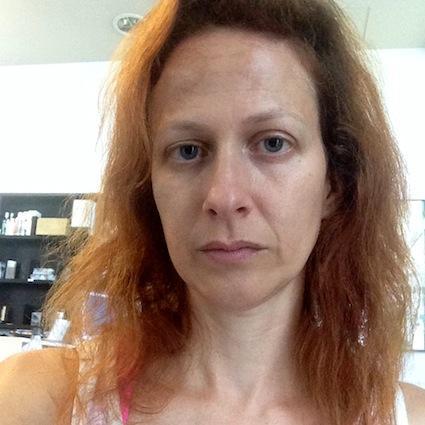 Na pomoc izpadanje las