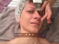 ciscenje por z ultrazvokom alterskin klub lepote