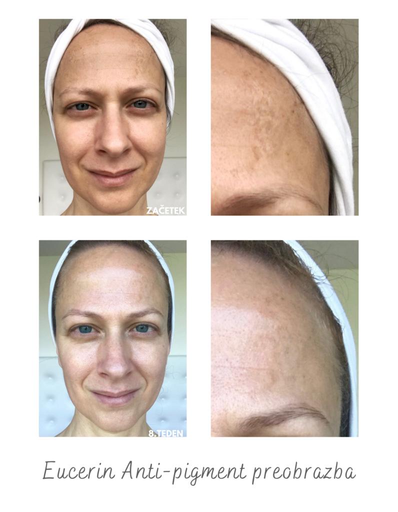 hiperpigmentacija učinkovita krema nika veger beautyfull blog